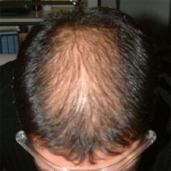 La vitamina C che i capelli non hanno abbandonato